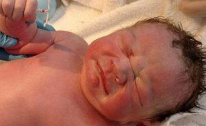bambino nasce con spirale in mano