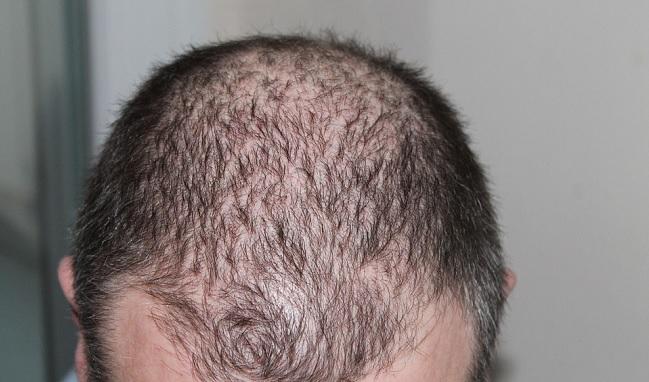 Alopecia androgenetica nuova tecnica di medicina rigenerativa