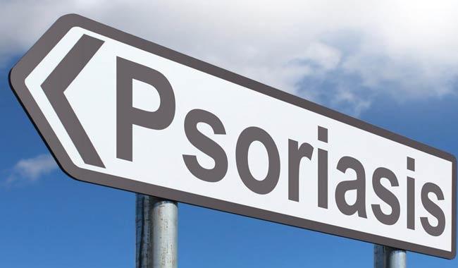 La psoriasi puo davvero aumentare il rischio di colite ulcerosa