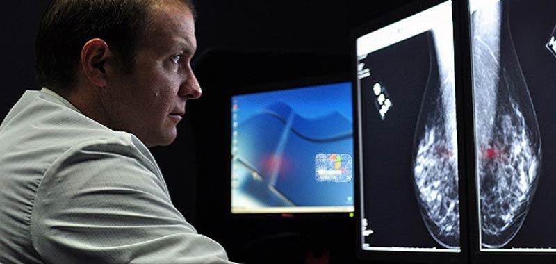 Tumori per i Nobel il cancro sara sconfitto entro il 2050