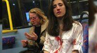 Londra coppia lesbica pestata da gruppo di bulli