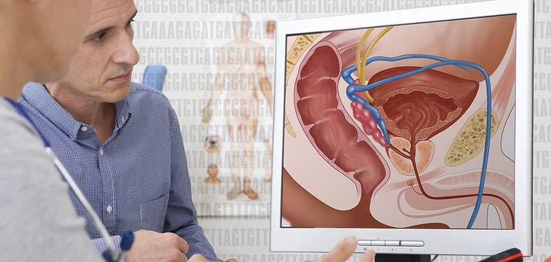 Cancro alla prostata, quali trattamenti sono consigliati